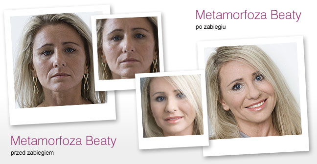 metamorfoza_beata01
