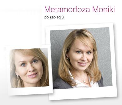 metamorfoza_monika_011