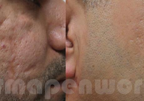 dermapen-przed-po-blizna-twarz